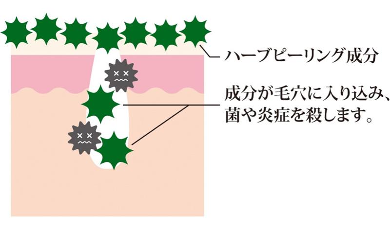 ハーブピーリング成分 成分が毛穴に入り込み、菌や炎症を殺します。